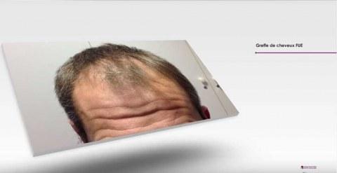 Dr Nathan YADUN - Greffe de cheveux FUE